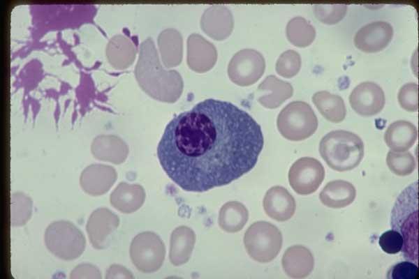 » Plasma Cells