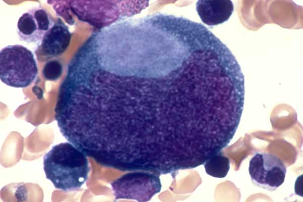itp disease May 2013 idiopathic thrombodytopenic purpura , also called immune-mediated thrombocytopenia, is a disease that attacks the blood platelets it can be a primary autoimmune disease or secondary to lupus, various types of infections, or caused by certain drugs.