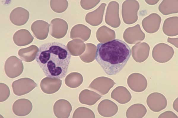 blood analysis  Properties Tests Benefits amp Facts