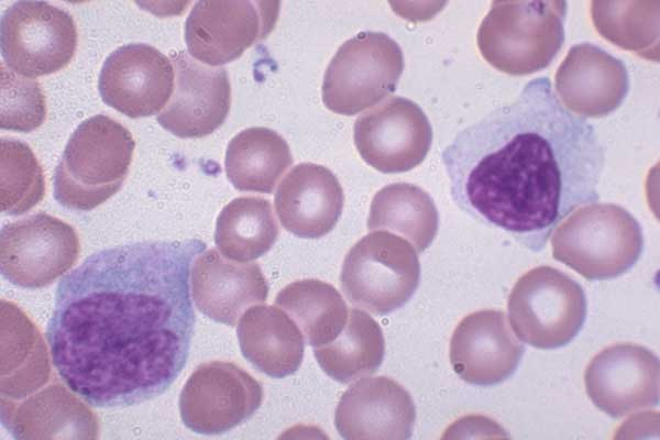 187 white blood cell wbc
